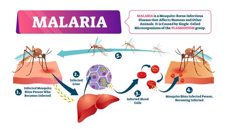 Malaria vector illustration. Labeled mosquito bite infected disease scheme. Blood cells illness caused by dangerous insects. Educational infographic cycle with liver poisonous wildlife infections.