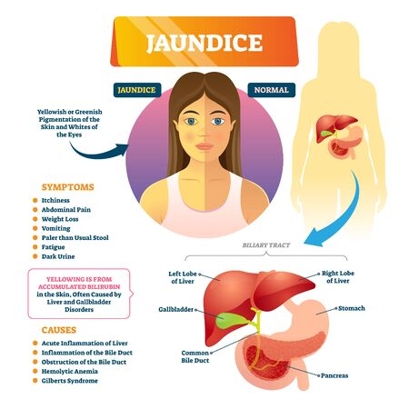 Jaundice icterus vector illustration. Labeled yellowish anatomical disease explanation scheme. Educational medical diagram with symptoms, causes, biliary tract and compared normal with pigmented skin.