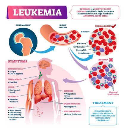 Ilustración de vector de leucemia. Infografía de cáncer de sangre educativo etiquetado. Enfermedad de la médula ósea y células anormales. Síntomas de diagnóstico médico y lista de malos tratos. Primer plano comparado normal y enfermo. Ilustración de vector
