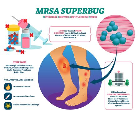 MRSA super bug vector illustration. Labeled staph body infection explanation scheme. Medical strain of methicillin resistant Staphylococcus aureus bacteria. Antibiotics resistant disease infographic.