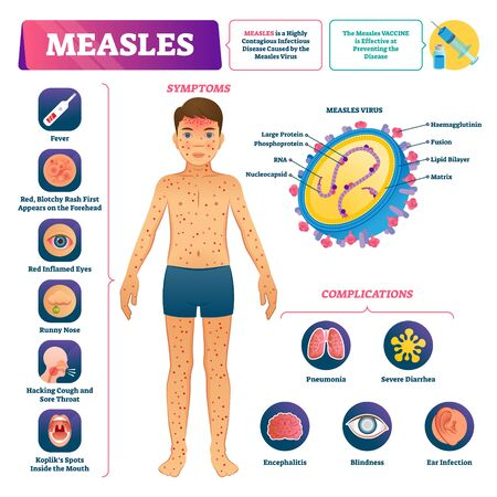 Measles vector illustration. Labeled medical virus disease medical scheme. Anatomical symptoms, prevention and complications list. Educational infographic visualization. Contagious infection illness.