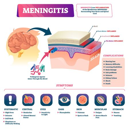 Meningitis vector illustration. Medical labeled brain covering membrane inflammation scheme. Educational anatomical diagram with isolated closeup side view structure, symptoms and complications list.