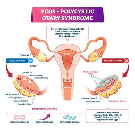 Polyzystisches Ovarialsyndrom oder PCOS-Vektorillustration. Beschriftetes Vergleichsschema für innere Fortpflanzungskrankheiten mit gesunden und kranken weiblichen Organen. Satz anatomischer Symptome aufgrund erhöhter Androgene