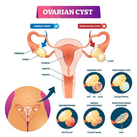 Ovarian cyst vector illustration. Labeled medical condition types scheme. Anatomical infographic with normal and sick gynecological disease comparison. Woman reproductive system complications list.