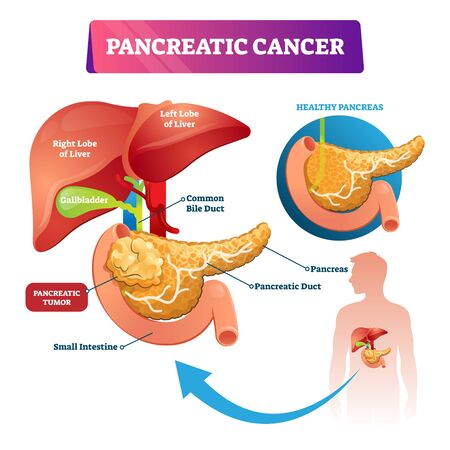 Pancreatic cancer vector illustration. Labeled sick stomach oncology disease scheme. Diagram with inner organs structure, healthy and tumor comparison. Liver lobes, gallbladder and intestine example. Ilustrace