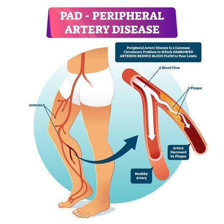 Periphere Arterienerkrankung PAD-Vektor-Illustration. Beschriftetes medizinisches Strukturschema mit gesunder oder verengter Plaque im Gefäßvergleich. Beispiel für anatomisch geschädigtes peripheres Organ und blockiertes Blut