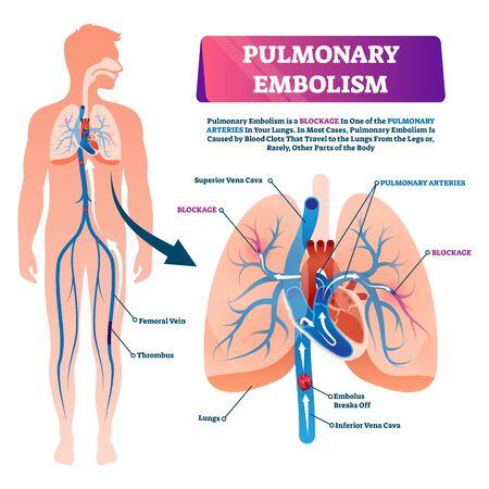 Ilustración de vector de embolia pulmonar. Esquema de enfermedad de bloqueo sanguíneo pulmonar etiquetado. Primer plano anatómico aislado con condición de las arterias pulmonares. Diagrama educativo con proceso de freno de émbolos de coágulos
