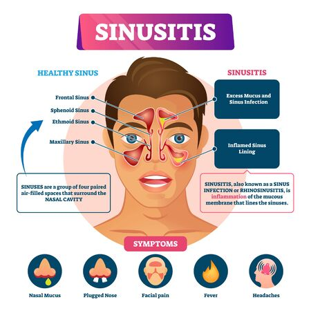 Sinusitis vector illustration. Labeled rhinosinusitis inflammation scheme. Anatomical explanation with healthy and infection nasal illness comparison, symptoms list and educational disease infographic Çizim