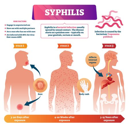 Syphilis vector illustration. Labeled sexual infection explanation scheme. Anatomical infographic with exposure stages, symptoms and risk factors. Unprotected contact disease and transmission illness. Иллюстрация