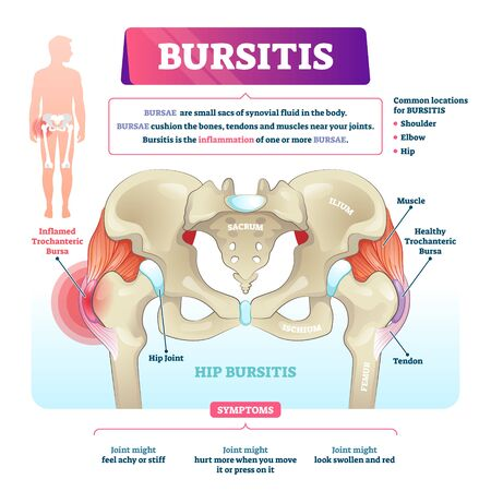 Bursitis vector illustration. Labeled bursae synovial inflammation scheme. Bone and tendon illness and disease diagnosis. Educational chronic problem symptoms, causes and anatomical structure diagram.