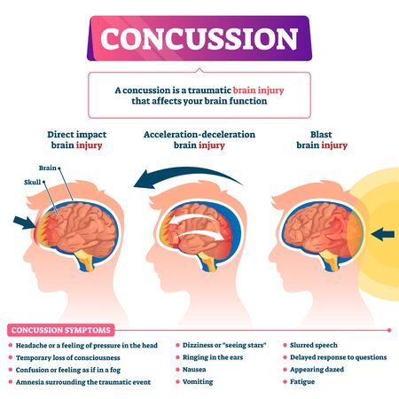 Concussion vector illustration. Labeled educational post head trauma scheme. Medical explanation with brain injury kinds. Direct impact, acceleration and blast health causes with symptoms list diagram