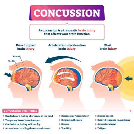 Gehirnerschütterung-Vektor-Illustration. Beschriftetes pädagogisches Post-Kopf-Trauma-Programm. Medizinische Erklärung mit Arten von Hirnverletzungen. Direkte Auswirkungen, Beschleunigung und Explosionsgesundheitsursachen mit Symptomlistendiagramm