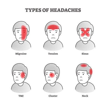 Types d'illustration vectorielle de maux de tête. Ensemble éducatif de douleur cérébrale étiqueté. Divers problèmes de santé avec migraine faciale, tension, sinus, ATM, symptômes des zones de cluster et du cou. Description du malaise Vecteurs