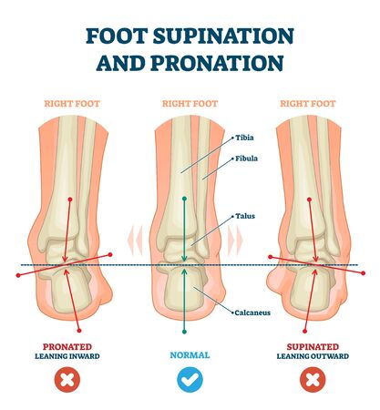 Foot supination and pronation vector illustration. Labeled medical scheme with incorrect leg joint movement. Educational diagram with pronated, normal and supinated compared examples with bone titles. Illustration