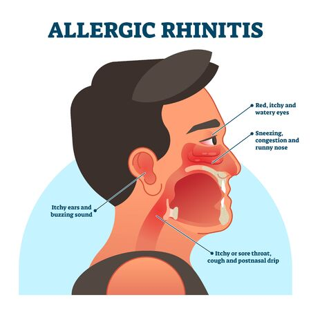 Allergic rhinitis medical diagram, vector illustration labeled information. Patient symptoms like red, itchy eyes, sneezing and runny nose, sore throat and buzzing sound in ears. Head cross section.