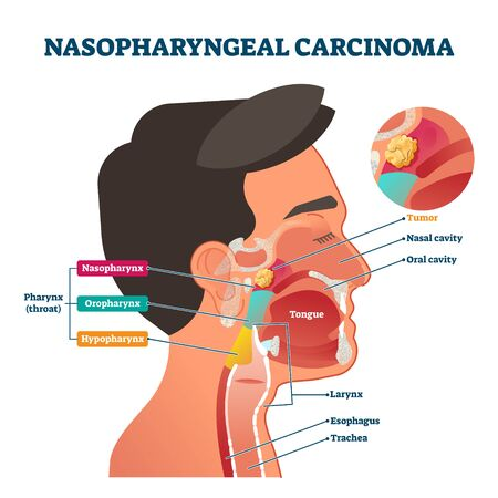 Nasopharyngeal carcinoma tumor, vector illustration labeled diagram. Medical nose, mouth and throat cross section scheme with problem area. Health care educational information. Nasal and oral cavity