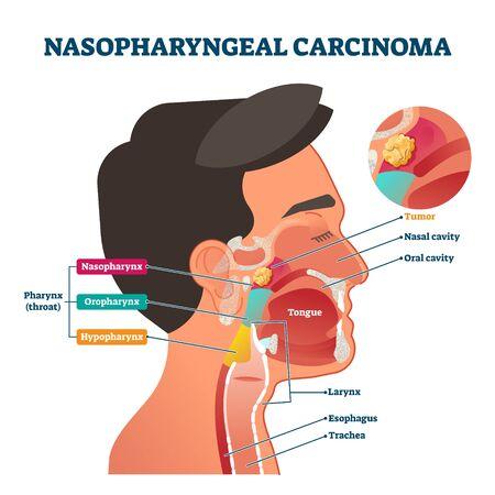 Tumeur de carcinome du nasopharynx, diagramme étiqueté d'illustration vectorielle. Schéma de coupe transversale du nez, de la bouche et de la gorge avec zone à problème. Informations pédagogiques sur les soins de santé. Cavité nasale et buccale