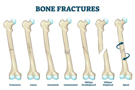 Bone fractures vector illustration. Educational labeled broken leg, arm scheme. Various damaged injury types with titles. Trauma description with transverse, linear, greenstick, comminuted and spiral.