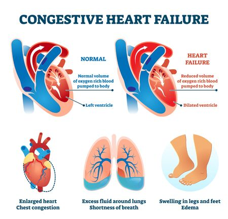 Kongestive Herzinsuffizienz-Vektor-Illustration. Etikettiertes medizinisches Problem vs. gesundes Organ-Vergleichsschema. Krankheitssymptome Infografik mit pädagogischem erweitertem Ventrikel, Kardio-Sauerstoffversorgungsdiagramm.