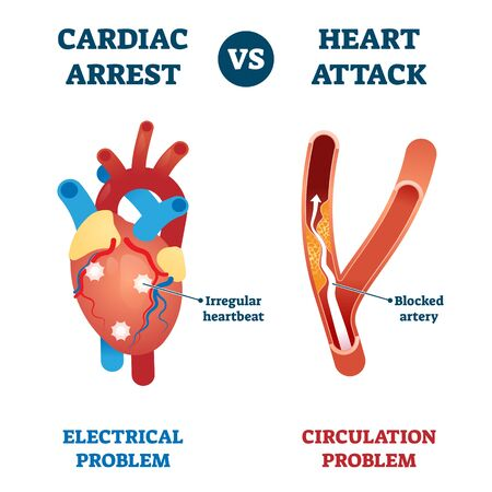 Cardiac arrest vs heart attack illustration. Labeled health problems comparison - electrical or circulation caused. Medical educational sick organ failure diagnosis scheme with explanation.