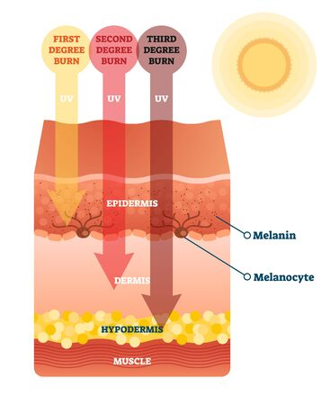 Sunburn skin damage anatomical cross section diagram. Medical problem explanation scheme. UV light impact on epidermis, dermis and hypodermis layers. Cancer risk caution and health danger awareness.