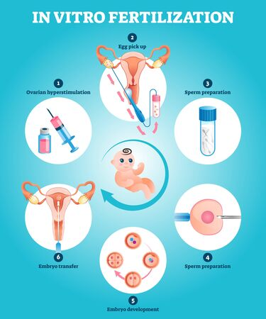In Vitro fertilization artificial pregnancy reproduction vector illustration. Labeled educational explanation with all procedure process steps and phases. Gynecological solution for human infertility.