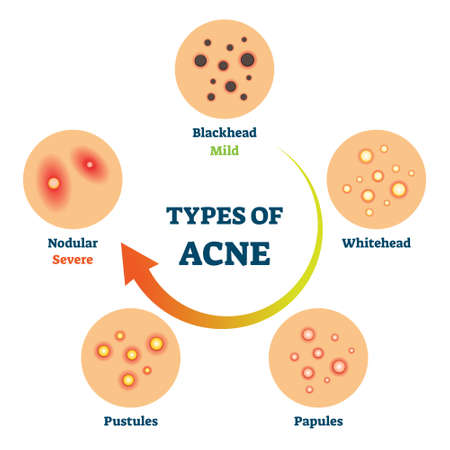 Types of acne as medical skin disease comparison scheme vector illustration. Educational diagram with blackhead, whitehead, papules, pustules and nodular example. Dermatological facial problem drawing Illustration