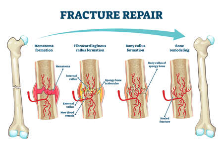 Fracture repair as educational bone remodeling and formation stages vector illustration. Labeled structure and hematoma healing process description from physiology and anatomy aspect. Trauma recovery. Ilustracja