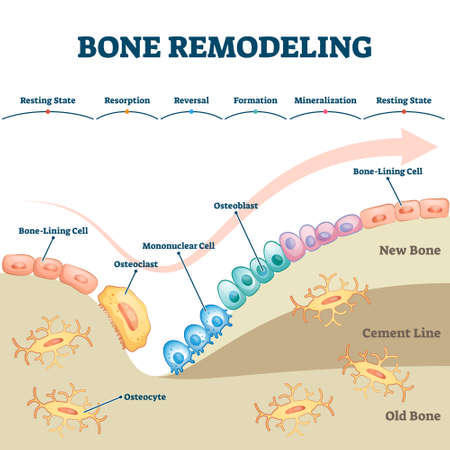 Bone remodeling process educational explanation with labeled structure scheme vector illustration. Skeleton growth closeup and formation stages with osteocyte, osteoclast or osteoblast example diagram Vettoriali