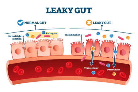 Leaky gut syndrome as medical chronic inflammation condition explanation. Labeled autoimmune health problem with transcellular and paracellular pathogens penetration in bloodstream vector illustration