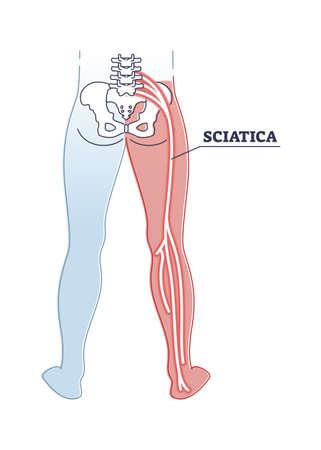 Sciatica pain or nerve weakness as leg lumbar radiculopathy outline diagram