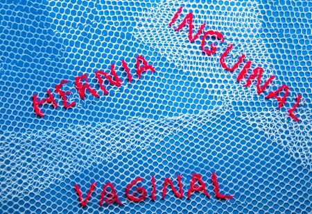 Surgical Mesh is seen as an International problem, being a very controversial way of repairing Hernias and Vaginal health issues.