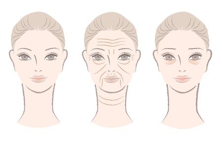 rejuvenating: Bella donna sempre rughe, pieghe, le linee e le borse sotto gli occhi come lei et�, isolato su bianco