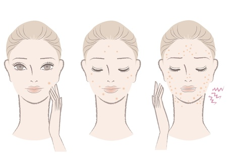 skin problem: Beautiful woman frowning pimples, Skin trouble Isolated on white  Cut out For other variation, check my portfolio   Illustration