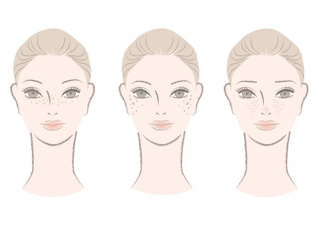 Beautiful woman annoyed with freckles, ages spots,large pores  Isolated on white  Cut out  Vector For other variation, check my portfolio