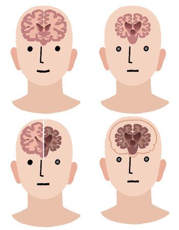 アルツハイマー病の脳の比較  イラスト・ベクター素材