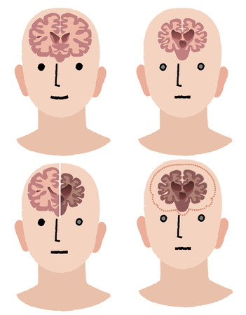 memory loss: Comparing brains with Alzheimer Illustration