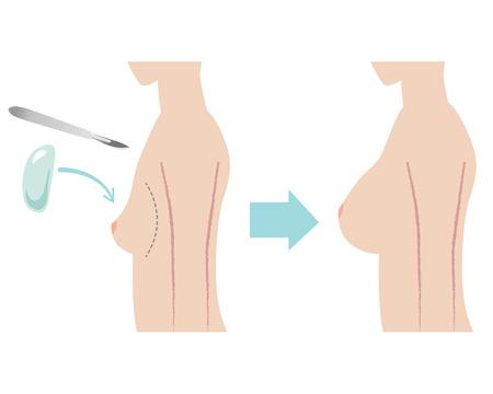 전에와 이미지 후 실리콘 유방 임플란트 수술