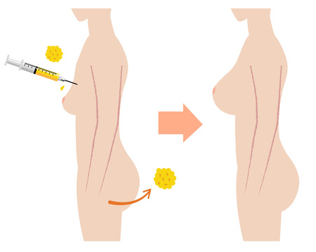 naked: Breast fatgrant surgery with before after images Illustration