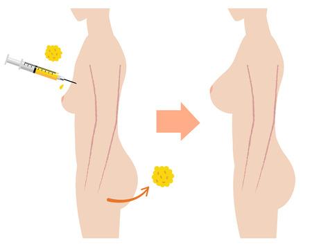 Beautiful breasts: phẫu thuật fatgrant vú với trước khi sau khi hình ảnh Hình minh hoạ