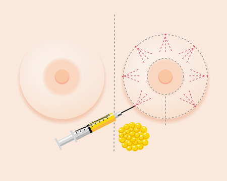 Breast fatgrant surgery image with injection and extracted fat