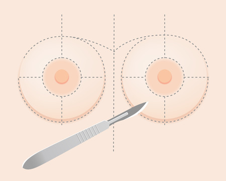 Breast implant surgery with surgical knife and guidelines