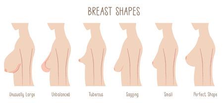 Kształt wykresu piersi -comparing duże, niesymetryczne, bulwiaste, ugięcia, małe i idealne piersi. Czcionka tekstu: Blackyard Sans