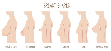 Breast Shape chart -comparing  large, unbalanced,Tuberous,sagging,small and perfect breast. Text font:Blackyard Sans Illustration