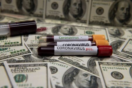 The economic situation of the dollar and the positive test at coronavirus.
