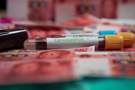 yuan and negative test at coronavirus.