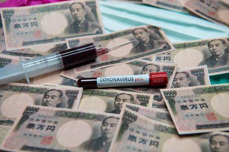 Japanese yen and positive test at coronavirus.