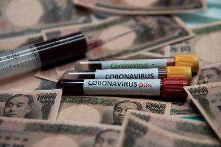 Japanese yen and positive test at coronavirus.