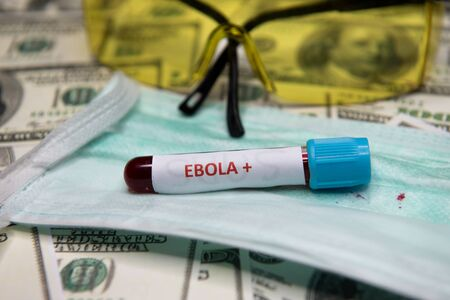 Dollars money and tube with blood and positive test at Ebola.