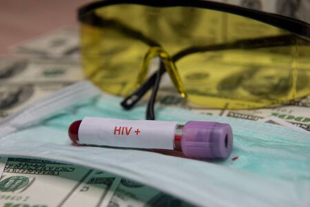 Dollars money and tube with blood and positive test at HIV.